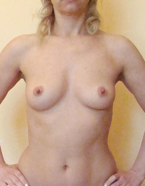 Пластические операции на груди волгоград