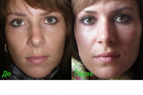 Ринопластика у гюсана фото до и после