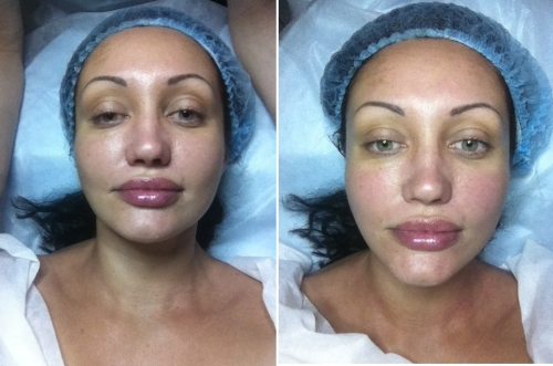 Лицо после плазмолифтинга фото сразу после процедуры