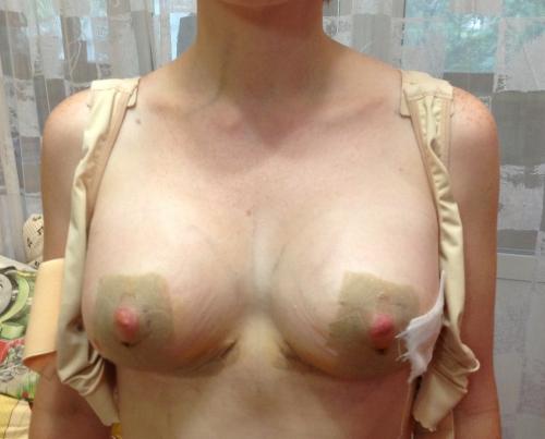 Продается ли в аптеках для увеличения груди