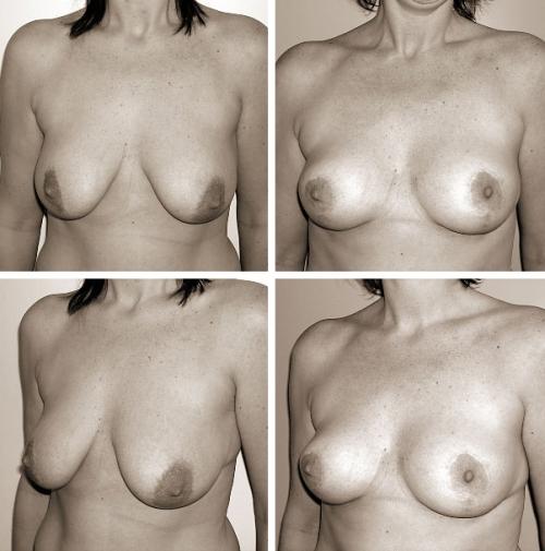 Фото частное сильно обвисшей груди 6 фотография