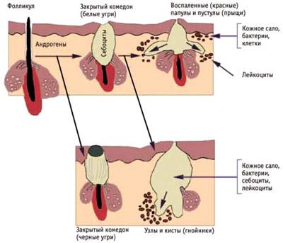 Болят дёсна после лечения зуба