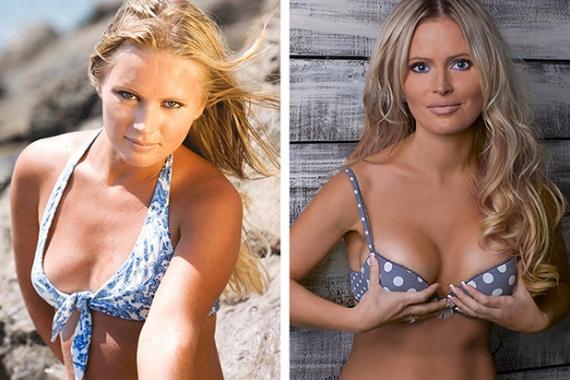 Дана Борисова до и после увеличения груди