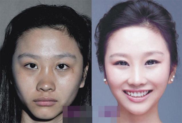 Пластическая хирургия глаза или ботекс пластическая хирургия по увеличению груди г.ростов/д