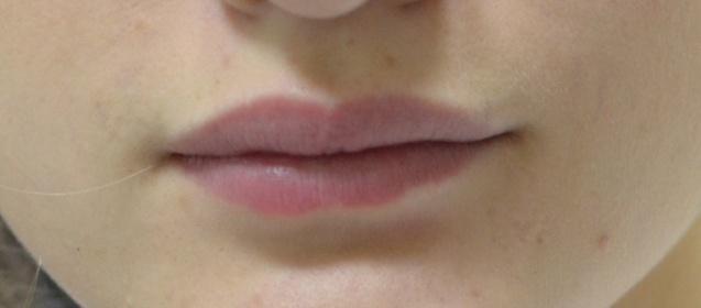 Вот мои губы до!